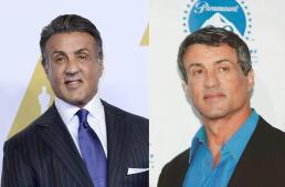 Celebrities transformados por el botox