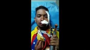 Herido durante una protesta violenta en Venezuela un violinista opositor que acompaña a las 'guarimbas'